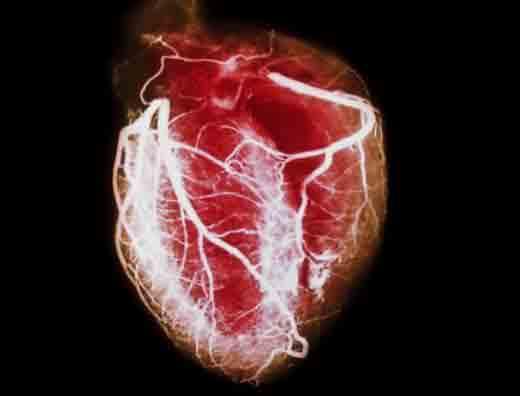 Болящее сердце: что делать, симптомы, как лечить и как не болеть