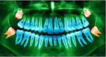 Удаление зубов мудрости даёт удивительный эффект: улучшение вкусовых ощущений